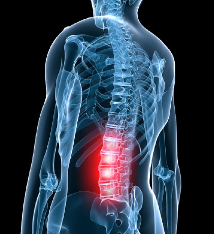 Chronic Back Pain