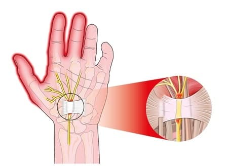 Carpal Tunnel Syndrome Treatment Longview WA